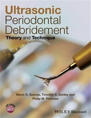 Ultrasonic Periodontal Debridement Theory and Technique
